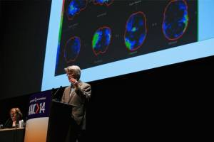 Thousands of researchers from around the world share their latest findings at the Alzheimer's Association International Conference.